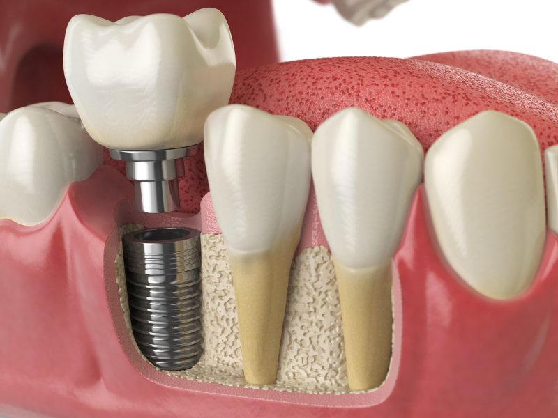 Diagram of a dental implant's components inside the jaw